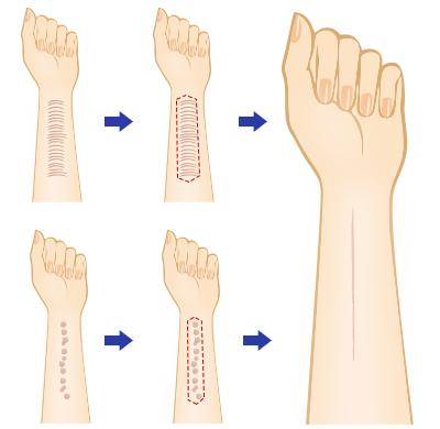 傷跡修正 傷跡 治療
