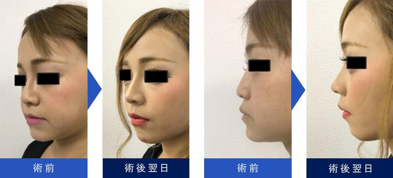 鼻 整形 バレ ない ばれない鼻整形 -...