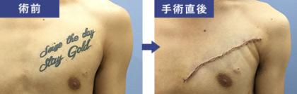 刺青 タトゥー 除去 切除 消す