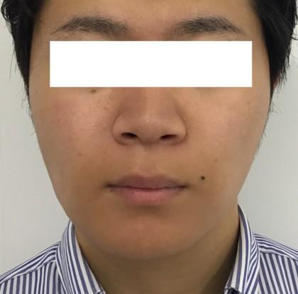 小顔 輪郭 脂肪溶解 エラボトックス