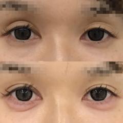 涙袋 可愛らしい目元 |東郷美容形成外科