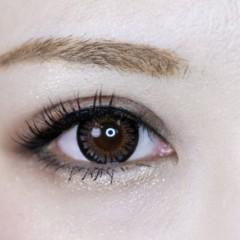 可愛いらしい目元 涙袋 ヒアルロン酸|東郷美容形成外科