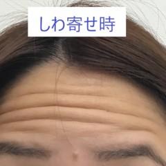 お顔のボトックス注射|東郷美容形成外科