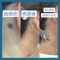タトゥー切除|東郷美容形成外科