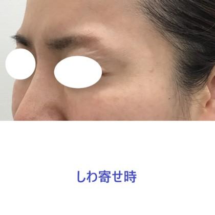 web_7151
