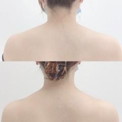 肩こり、盛り上がった肩 ボトックス